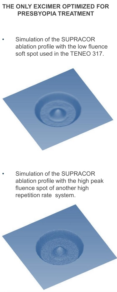 Explication opération presbyte par supracor